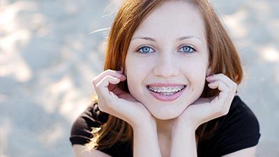 Teen Smiles 64