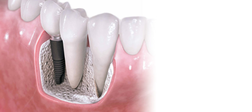 Dental implants are often the best option when it comes to replacing teeth.